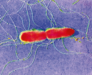 False-colour transmission electron micrograph (TEM) of Salmonella typhi, a gram-negative, flagellate bacterium, which is the causative agent of typhoid fever in humans. The bacteria are transmitted through food or drinking water contaminated by the faeces or urine of patients with typhoid, or through other carriers. Typhoid fever is an infection of the digestive system, causing high fever, rash, chills & sweating. A severe attack includes inflammation of the spleen & bones, delirium & erosion of the intestinal wall leading to haemorrhage. Magnification: x2450 at 6x7cm size.